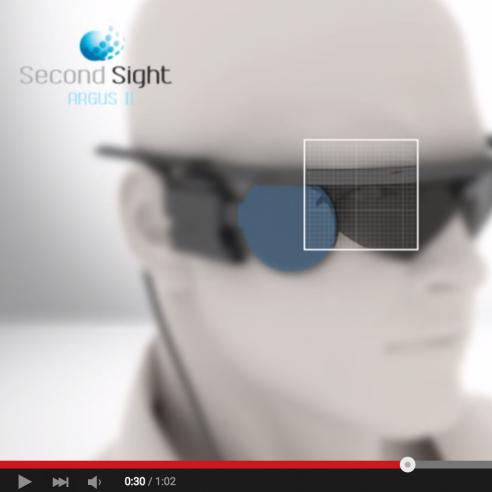 Screenshot of video about the Arugus II Retinal Prosthesis System