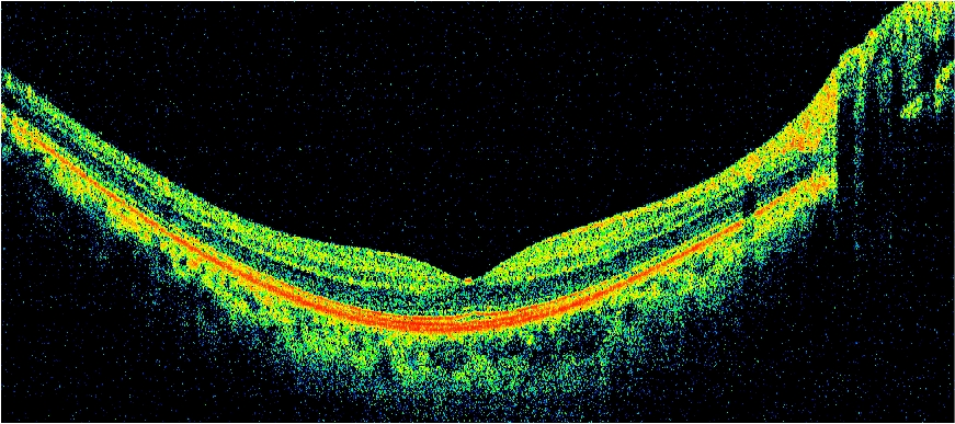 Rpb And Oct Research Research To Prevent Blindness