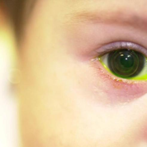 Infant wearing contact lens.jpg