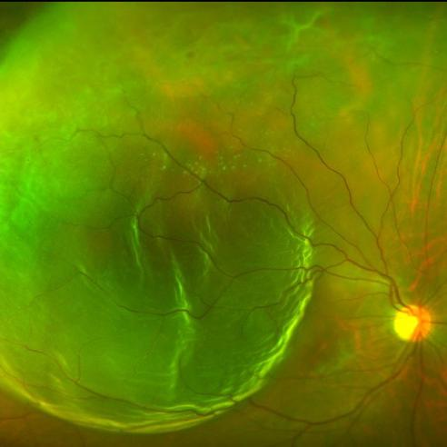 fundus photo of retinal detachment