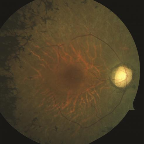 Retina of a person with retinitis pigmentosa